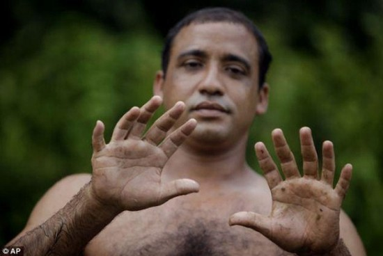 Meet-Hernandez-Garrido-With-24-Fingers-001