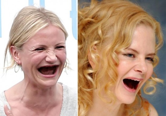 Celebrities Without Eyebrows and Teeth