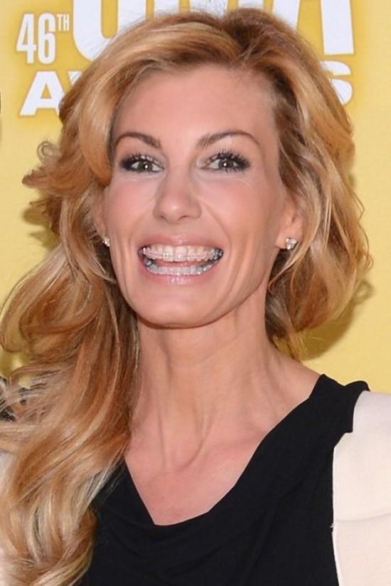 10 Famous Faces Who Wore Adult Braces - Fame Focus