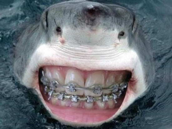 sharks with human teeth (15 photos) - funcage, Human Body