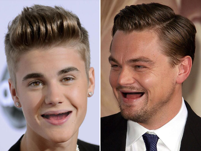 No Teeth Celebrities Before And After