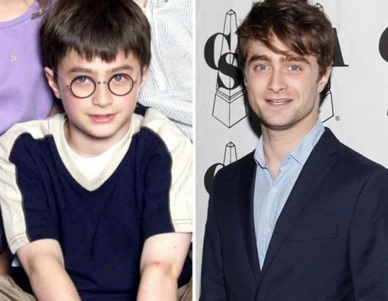 Daniel Radcliffe – 2000 and now